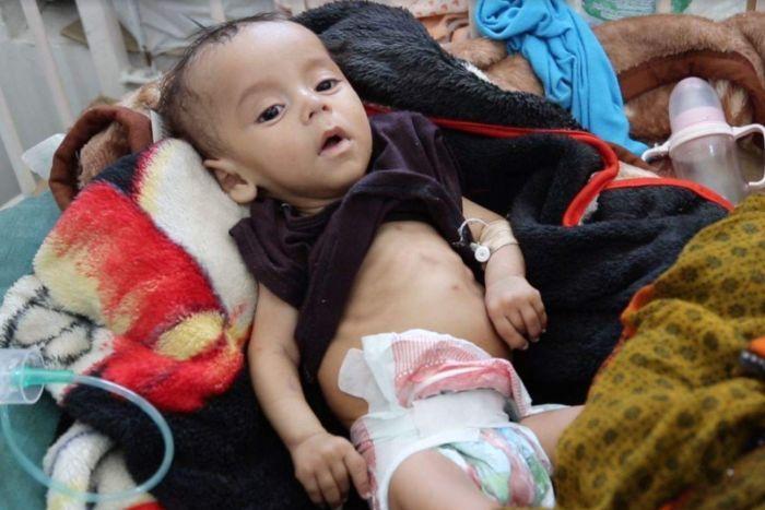 Yemen: Save the Children, i responsabili dei crimini e delle atrocità contro i bambini devono essere chiamati a risponderne davanti alla giustizia