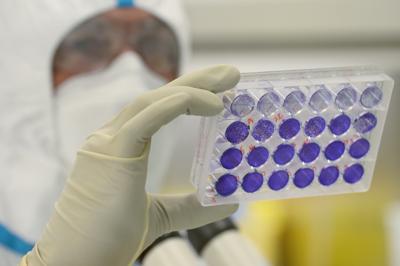 Coronavirus, al via la sperimentazione del vaccino italiano